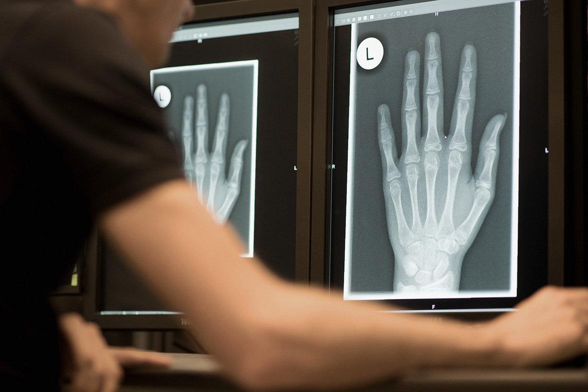 Ein Radiologe schaut sich am 12.01.2018 in Friedrichshafen im Röntgenbild die linke Hand eines 13-Jährigen an (Foto: Felix Kästle/dpa)