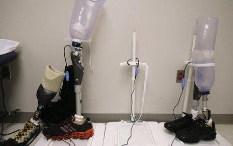 Zwar noch nicht so gut wie das biologische Original – aber die Prothesentechnologie macht ziemliche große Fortschritte