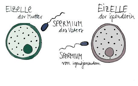 Infografik von Befruchtung der Eizelle durch ein Spermium